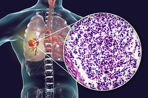leczenie drobnokomórkowego raka płuc